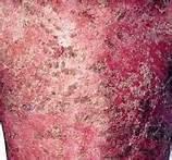 红皮型牛皮癣的发病原因