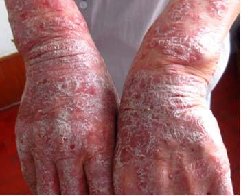 牛皮癣发病前都有哪些症状表现