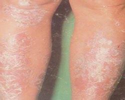 男性患關節型牛皮癬原因