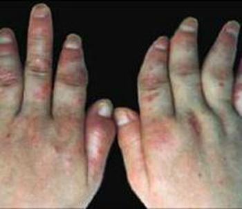 预防手臂牛皮癣症状的方法
